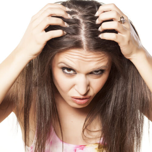 alopecia-mujer-bonome