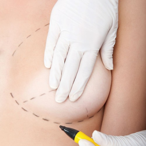 asimetria-mamaria