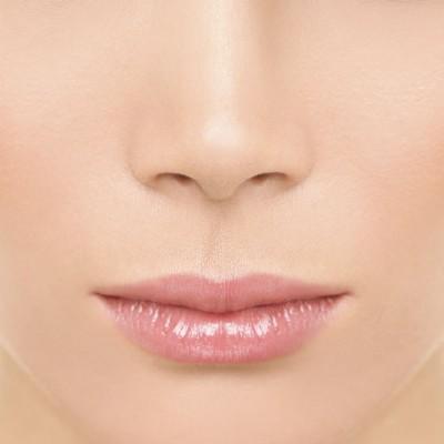 correcion-nariz-sin-cirugia-bonome