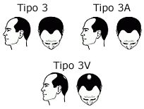 tipo-3