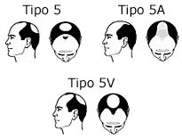 tipo-5