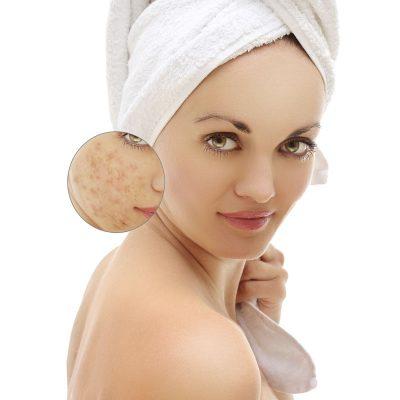 acne-bonome