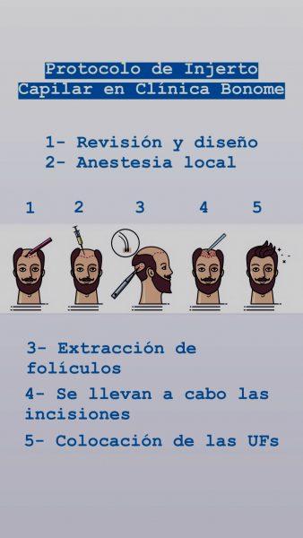 Protocolo por etapas