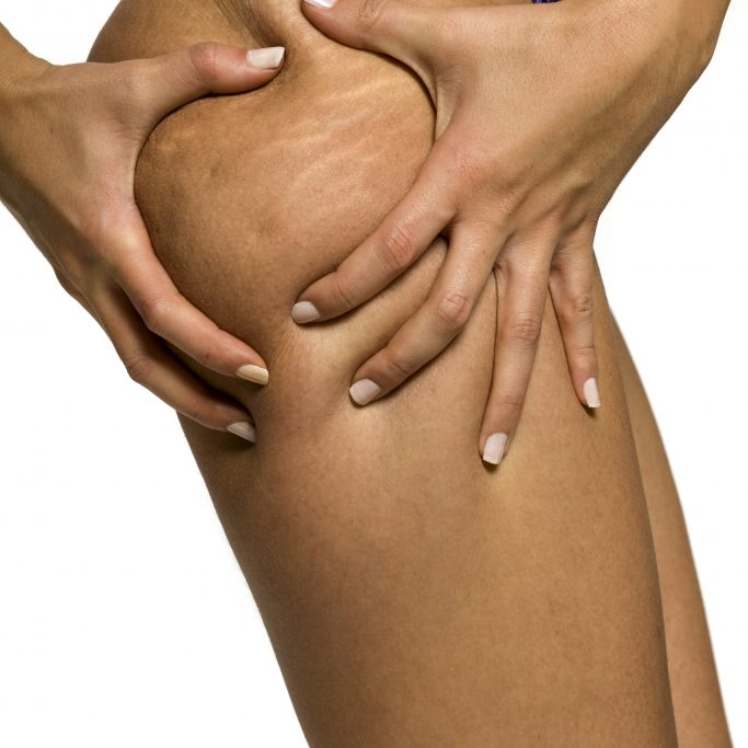 Woman pinching stretch marks and cellulite on her leg on white background