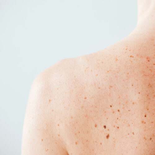 back view of diseased woman with melanoma on skin on white